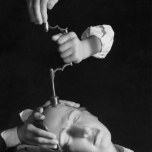 Herbert List, Trepanation, 1944